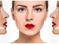 55441409 - the young female face with clean fresh skin, antiaging and thread lifting concept
